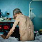 Прокуратура принудительно заставила лечиться туберкулезника с разлагающимся легким