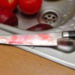 В Санчурском районе местная жительница изрезала своего сожителя: мужчине причинен тяжкий вред здоровью