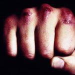 В Омутнинском районе за причинение смертельных травм своей знакомой осужден местный житель